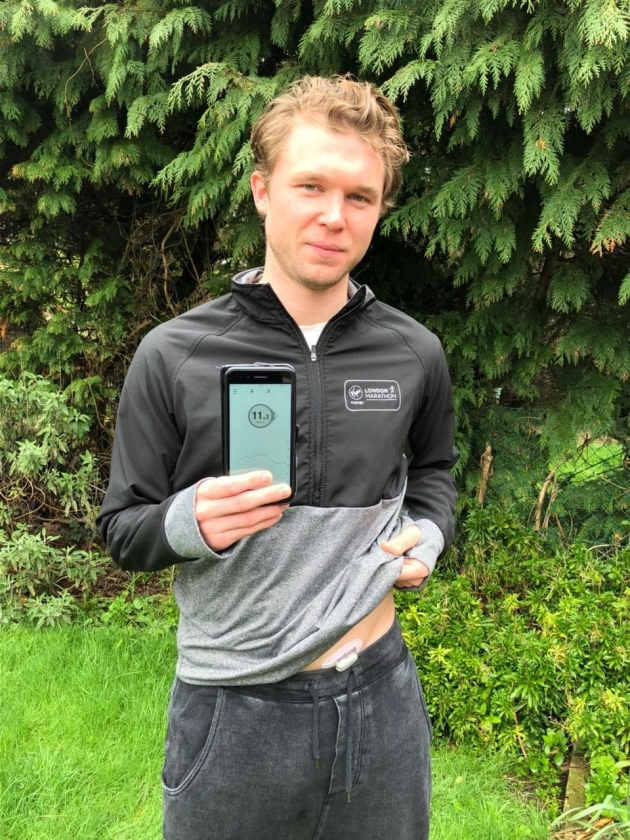 Gavin wearing the Dexcom G5 Mobile, a continuous glucose monitoring system.