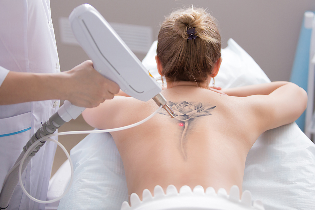 2019 will see a growth in laser tattoo removal - Scottish Field